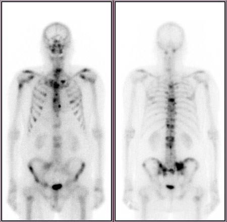 Whole body bone scan
