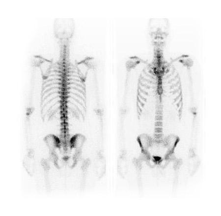 Whole body bone scan